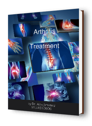 Cubierta del libro de Arthritis Its Treatments Ebook