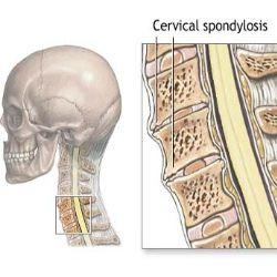 Blog Image 2 - Cervical Spondylosis Diagram