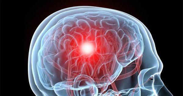 blog de imágenes del cerebro con una conmoción cerebral gráfico