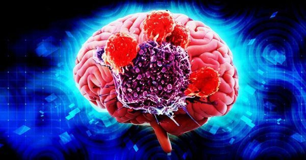 blog picture of brain with part cut out to see inside surrounded by a glowing blue background