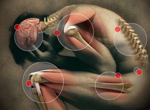 blog illustration of person with joint pain