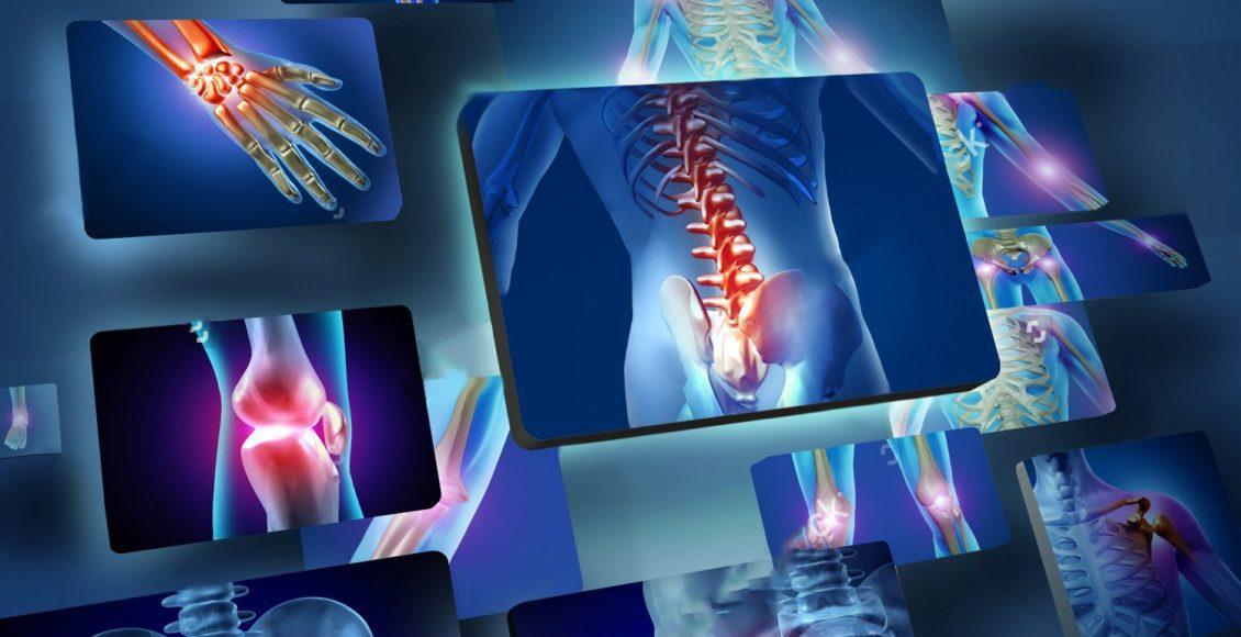 blog de imágenes de diversas áreas en las que la artritis puede golpear