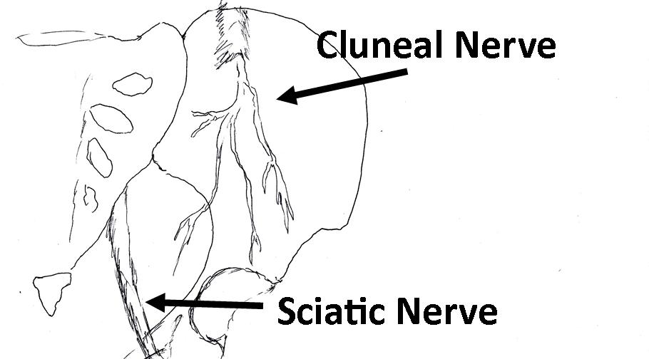 Diagrama del dolor del nervio ciático | El Paso, TX Doctor Of ...