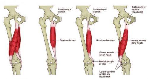 Rehabilitación de lesiones agudas del isquiotibial | El ...