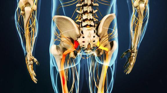 radiating pain in sciatic nerve