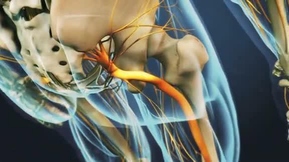 pierna de nalgas del nervio ciático