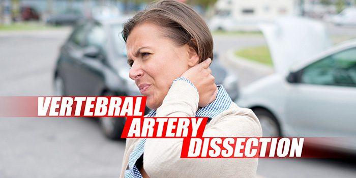 disección de la arteria vertebral