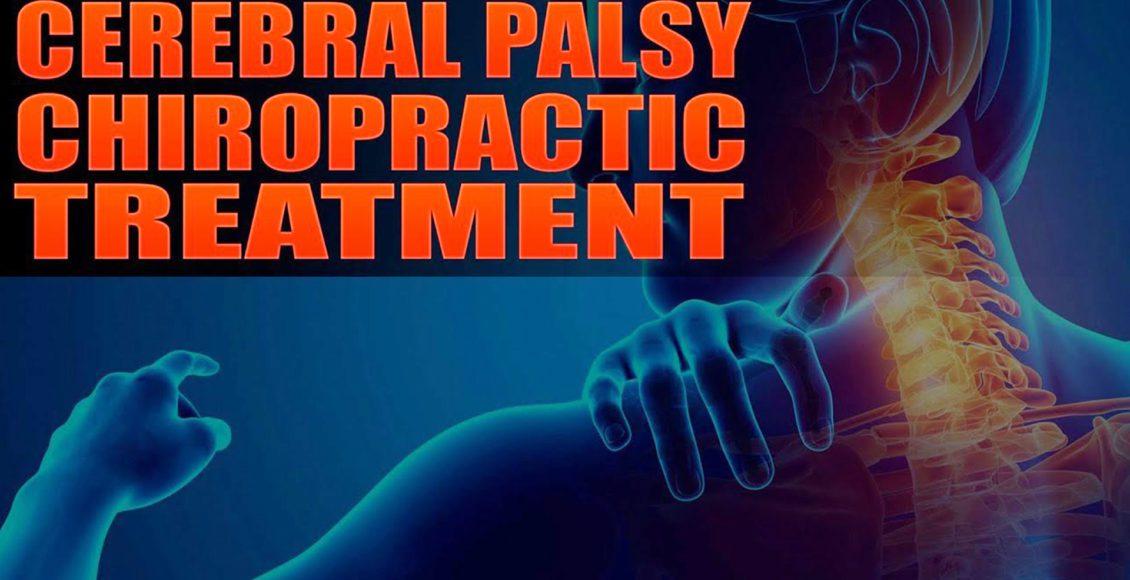 parálisis cerebral el paso tx.