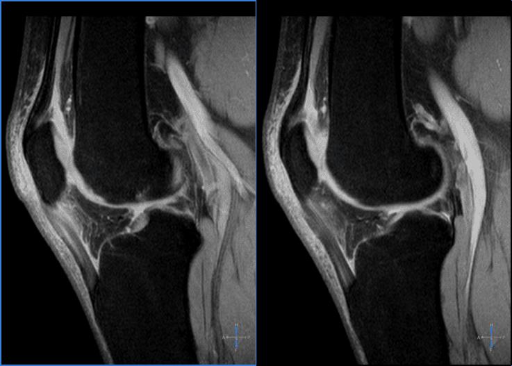 Diagnósticos por imágenes que demuestran tendinitis rotuliana o rodilla de saltador.
