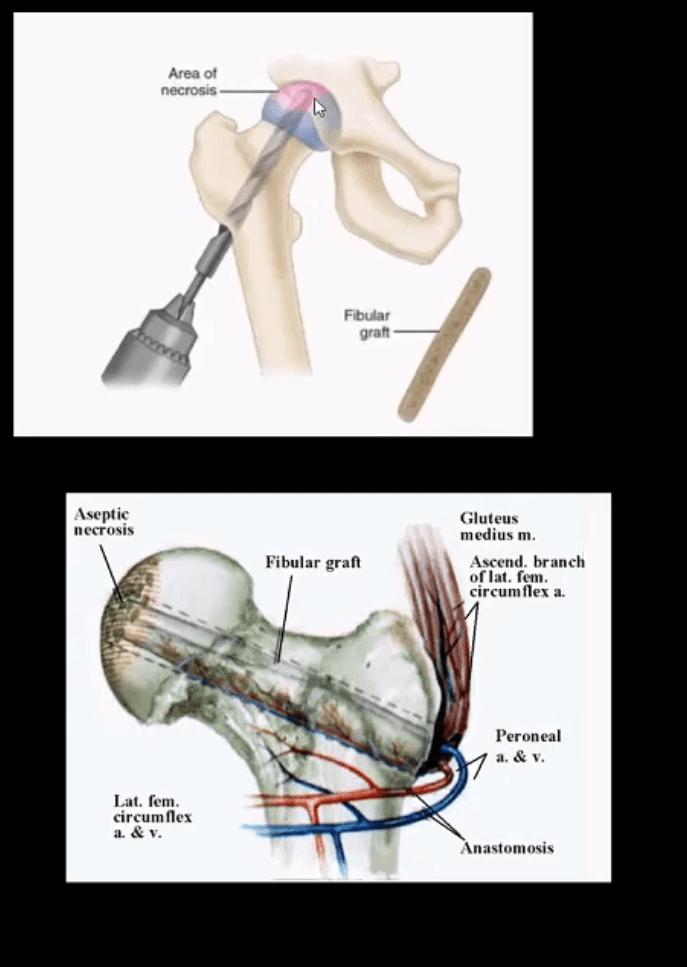 Diagnóstico de artritis de cadera y neoplasias del paso, tx.