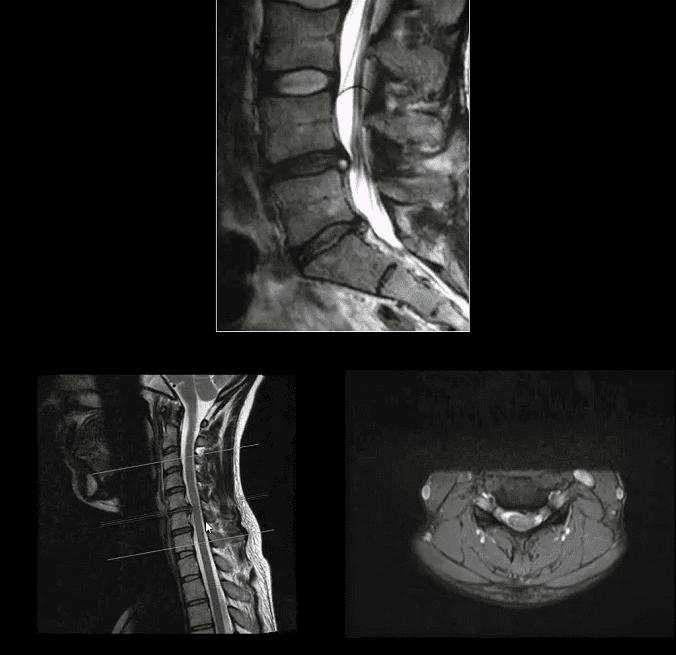 artritis espinal el paso tx.