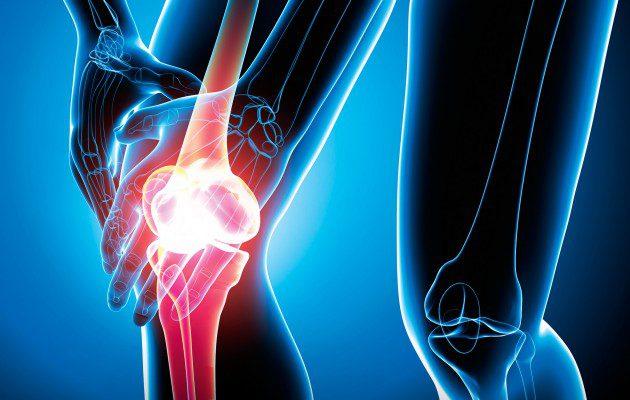 Vista de rayos X de una persona sosteniendo su rodilla debido a un dolor de rodilla.