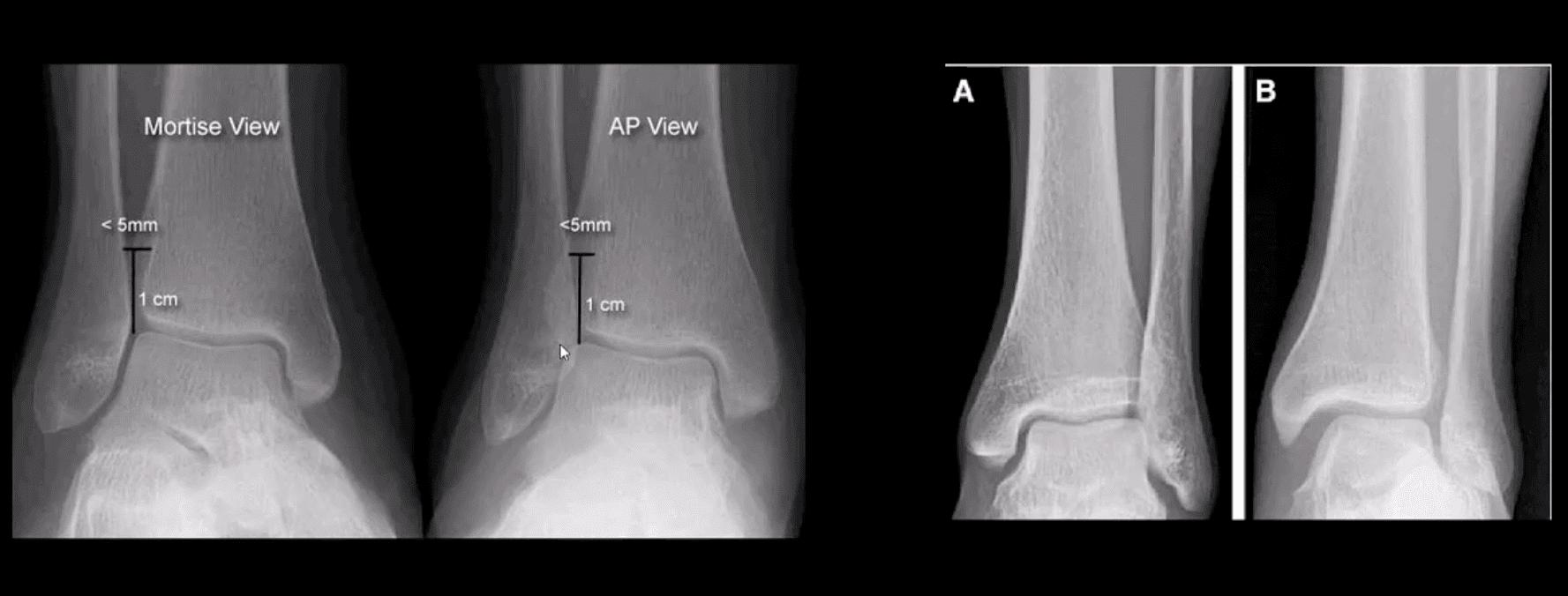 Tobillo pie artritis y traumatismo el paso tx.