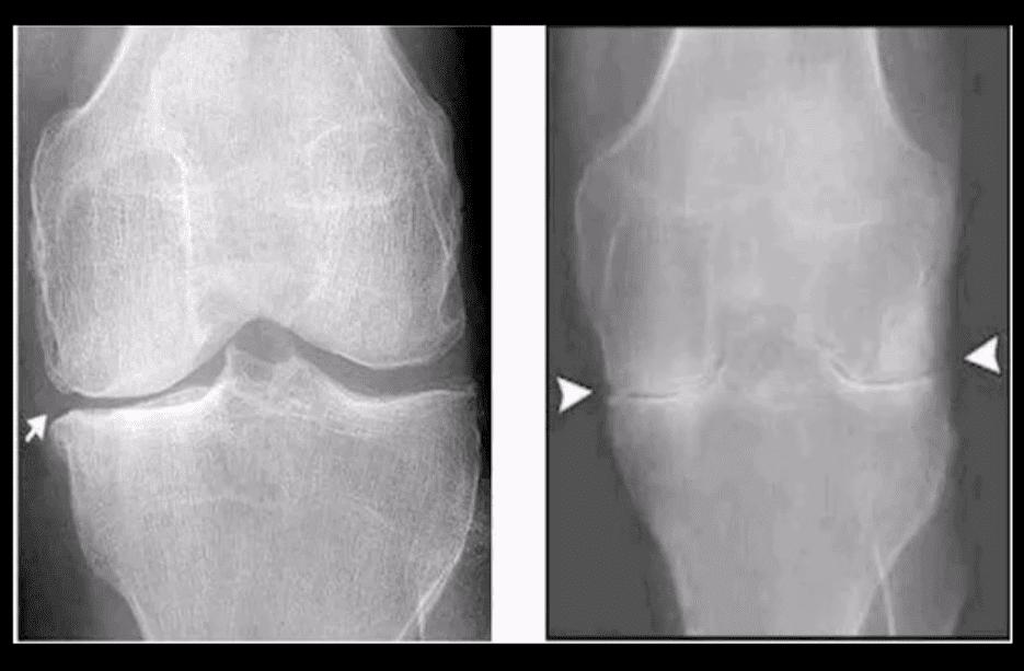 knee arthritis chiropractic care el paso tx.