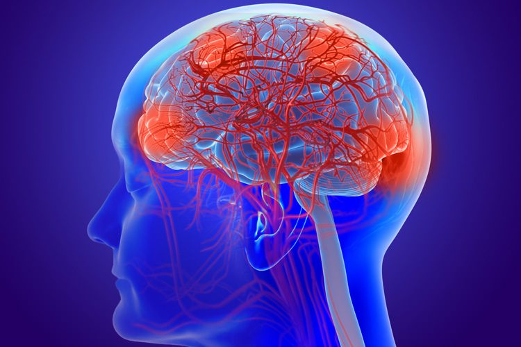 Neurología funcional: ¿Qué es un cerebro con fugas? El | El Paso, TX Quiropráctico