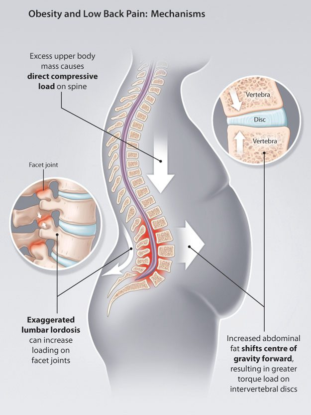 Losing Weight To Alleviate Back Pain