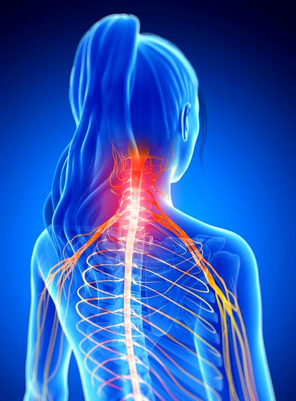11860 Vista Del Sol, Ste. 128 Chiropractic Mobilization For Cervical Joints With Radiculopathy