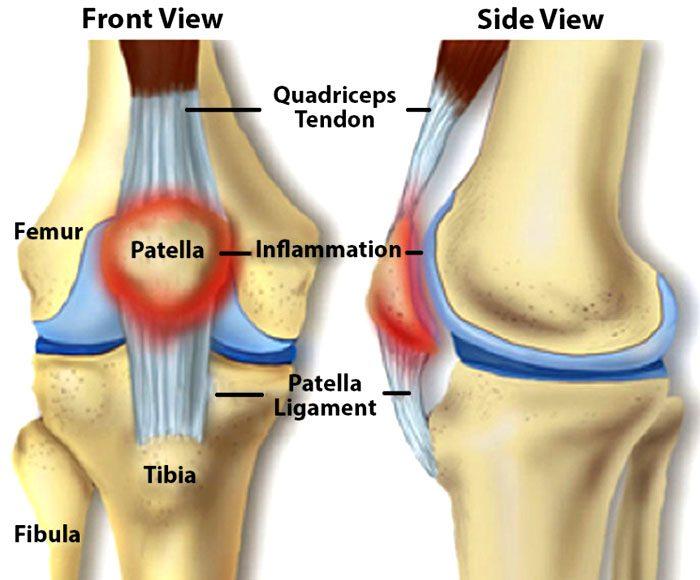 Knee Injuries, Surgeries, and Vitamin D Status