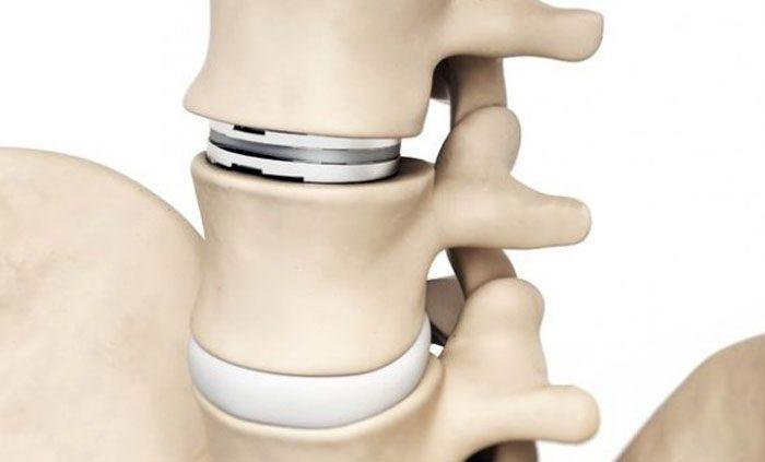 Opciones de fusión o reemplazo total de disco de espalda inferior / lumbar