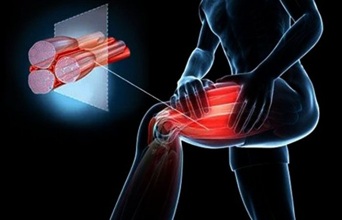 Low Levels of Choline Can Contribute To Muscle Cramps