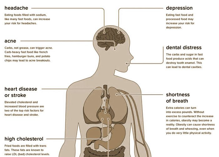 Chronic Pain and Nutritional Habits