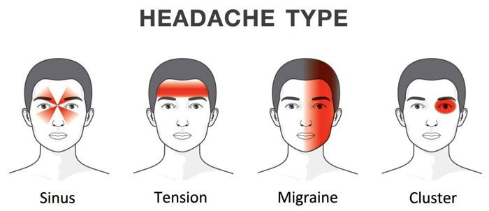 Headache Trigger Points and Bio-Chiropractic Treatment