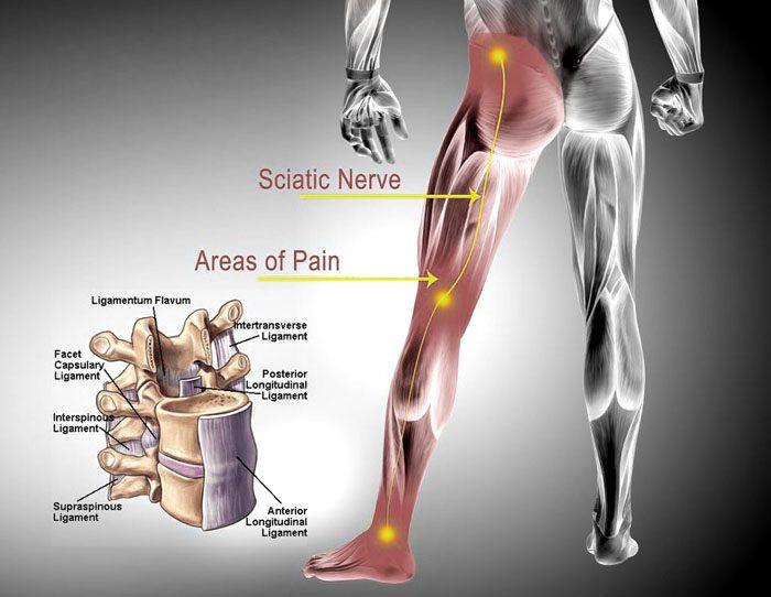 The Sciatic Nerve