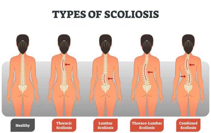 Adult Scoliosis: Diagnosis, Measurements, and Chiropractic