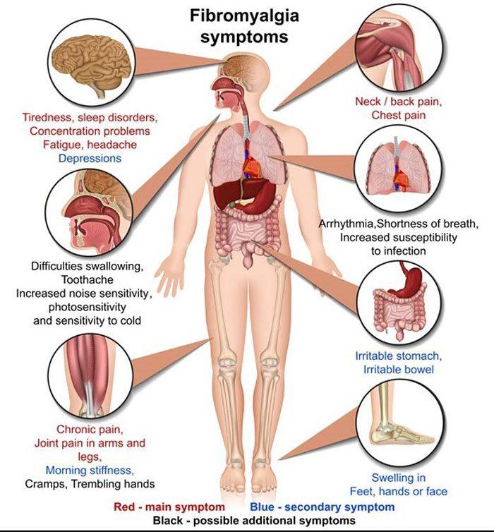 Fibromyalgia Altered Pain Perception Processing