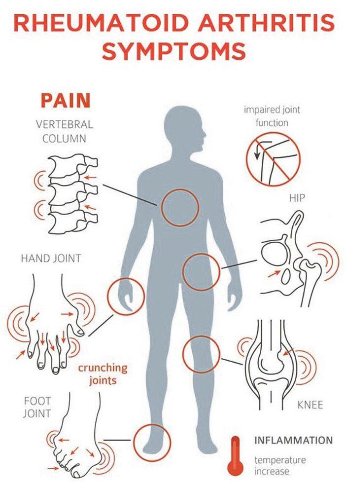 Rheumatoid Arthritis Flare-Ups Management