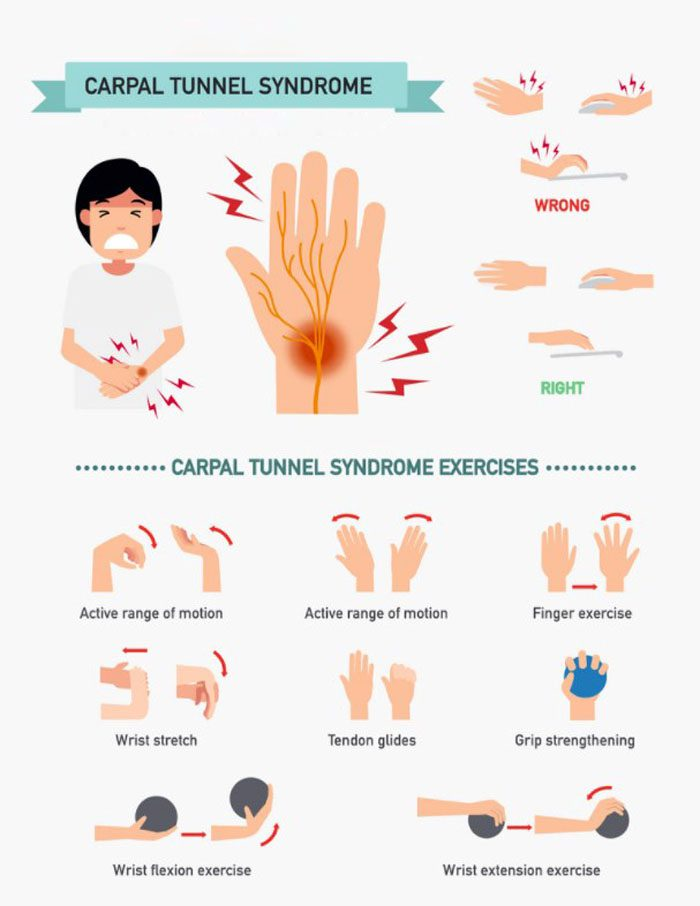 Carpal Tunnel Prevention