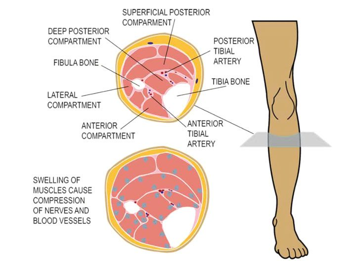 Compartment Syndrome Leg Pain