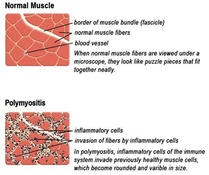 Polymyositis: Inflammatory Myopathy